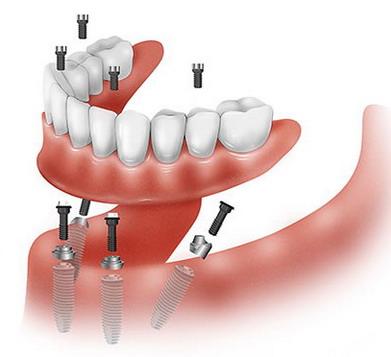 All on 4 implantavimas
